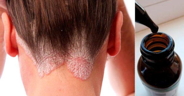 Чем лечить псориаз на голове эффективные средства и препараты